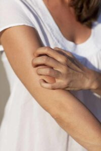 itching with histamine