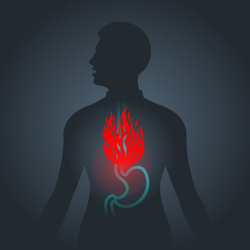 acid reflux and functional medicine