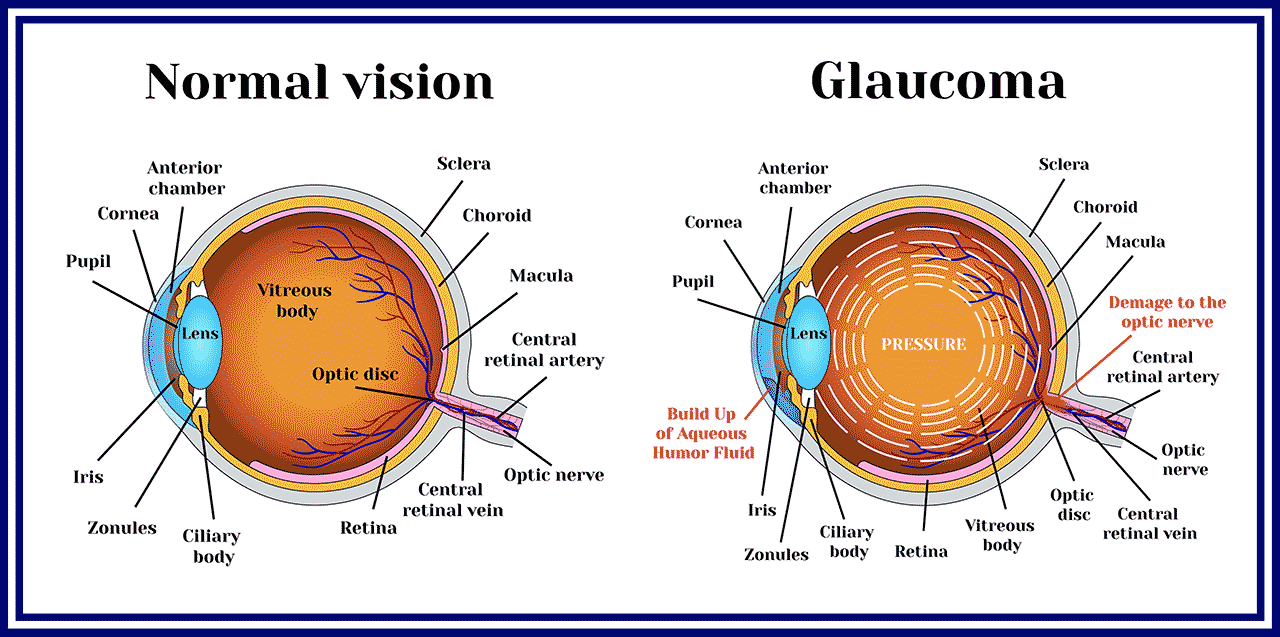 A diagram of the eye and the effects of Glaucoma